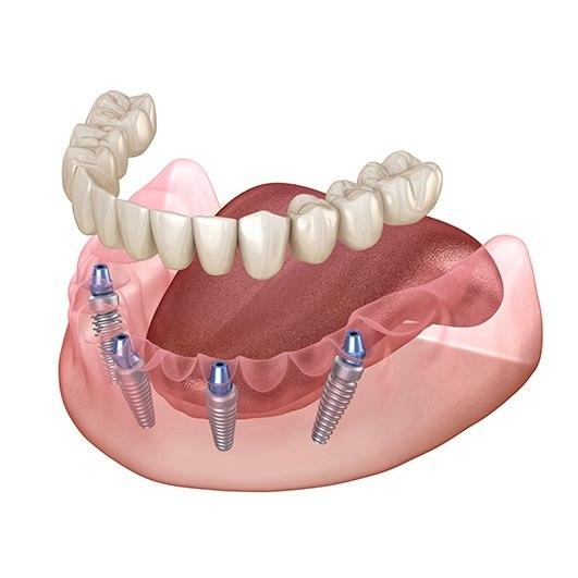 All-on-Four Dental Implants زراعة الأسنان باستخدام طابعة ثلاثي الأبعاد في تركيا.