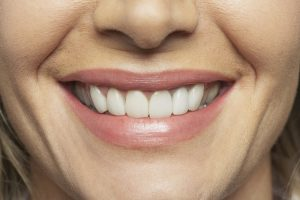 bone grafting in houston prepares the jaw for implants